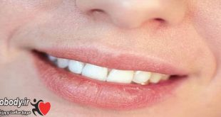 home-remedies-for-dry-lips